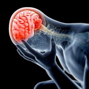 medical illustration - swollen, painful brain